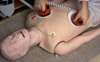 Дефибрилляция: ее виды, суть процедуры, показания, эффективность и прогноз