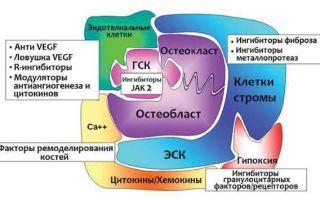 Миелофиброз первичный и хронический: что это такое, причины заболевания, стадии, симптомы, диагностика, лечение и прогноз