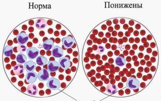 Гранулоциты: норма в крови и причины повышения содержания лейкоцитов