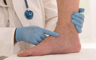 Тяжесть в ногах ниже колена, чем лечить, лечение народными средствами