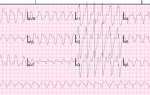 Пароксизмальная тахикардия: причины возникновения и симптомы болезни сердца, лечение и профилактика