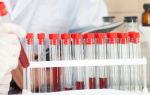 Иммунограмма: показания для проведения, подготовка, нормальные показатели крови для ребенка и взрослого