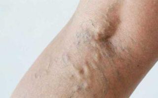 Болят вены на руках: причины, лечение в домашних условиях