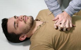 Сердечно-легочная реанимация: причины, последовательность действий, показания и первичная помощь