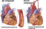 Операция на сердце: какие бывают манипуляции, показания, как проводить открытые и полостные методы
