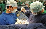 Стентирование сосудов сердца: отзывы, продолжительность жизни после стентирования