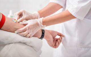 Ревматоидный фактор: определение, методы выявления в крови и причины повышения показателей