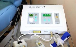 Влок — внутривенное лазерное облучение крови: показания и отзывы