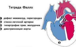 Врождённый порок сердца или впс: виды и причины развития, симптоматика, лечение и прогноз