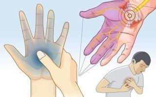 Гипокалиемия: причины появления, симптомы и лечение недостатка микроэлемента в организме человека