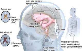 Внутричерепная гипертензия: причины патологии головного мозга, симптомы и признаки