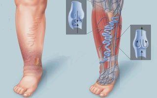 Флебит: симптомы острого и хронического воспаления вен, виды патологии нижних конечностей