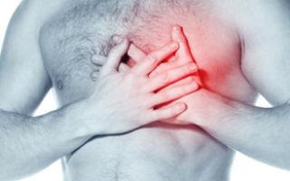 Гипертрофическая кардиомиопатия: что это такое, классификация, причины, симптомы и лечение