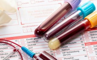 Аццп анализ крови: что это такое, расшифровка, таблица