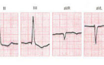 Электрическая ось сердца: что это такое, положение, норма, отклонения, причины отклонений,