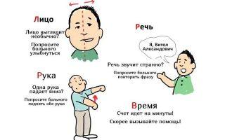Инфаркт мозга: обширный ишемический инсульт, его причины, симптомы и последствия