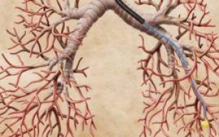 Легочное кровотечение: причины, симптомы, диагностика и лечение