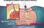 Мно: показатели в анализе крови, контроль у здоровых людей и пациентов с патологиями