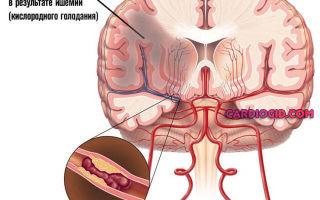 Главные симптомы повышенного давления: признаки и причины гипертонии у женщин и мужчин, последствия