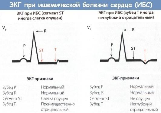Холтер: использование аппарата для суточного мониторинга сердца, показания к применению и техника обследования