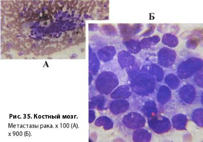 Гемоглобин при онкозаболеваниях: нормы, причины отклонений