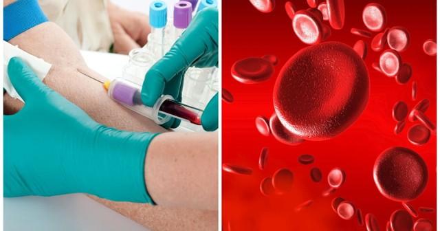 Повышенный ферритин при низком гемоглобине: причины, как лечить