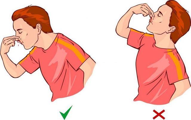 Носовые кровотечения: можно ли укрепить сосуды