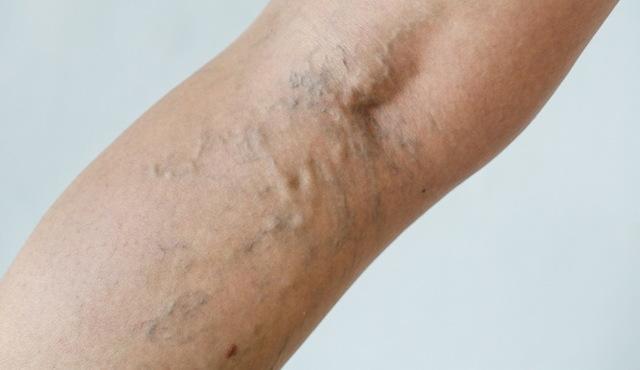 ДВС-синдром: стадии, патогенез, причины и лечение