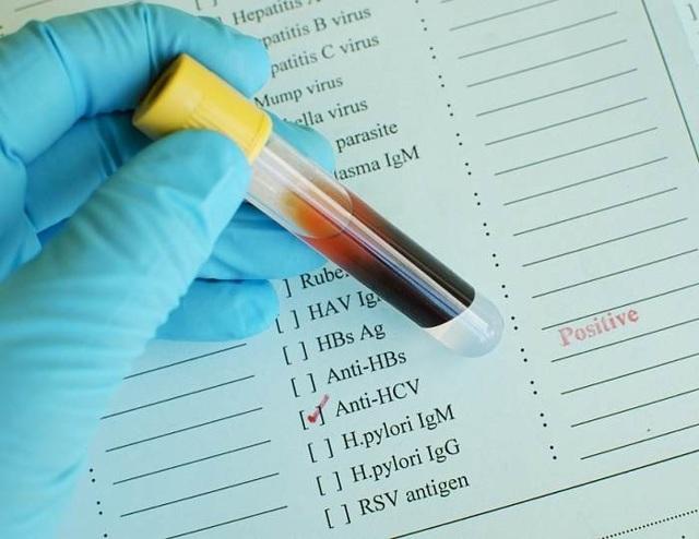 Анализ крови на ВИЧ (СПИД) инфекцию: описание, методы диагностики, расшифровка результатов