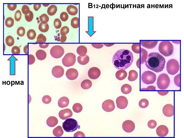 Дефицитная анемия В12 симптомы, лечение, анализ