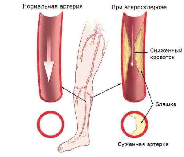 Атеросклероз нижних конечностей (ОАСНК): основные причины и симптомы, диагностика, способы лечения