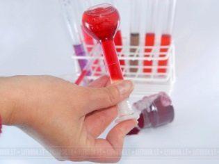 Анализ крови на беременность на ранних сроках: как называется, как сдавать, расшифровка