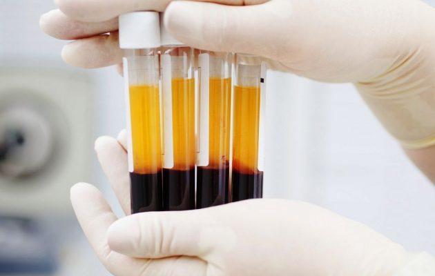 Как часто донор может сдавать кровь, плазму: в год, месяц, по закону, на плазму, противопоказания, как подготовиться