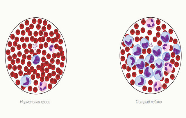 Лейкоз крови: что это такое, симптомы у взрослых, лечение