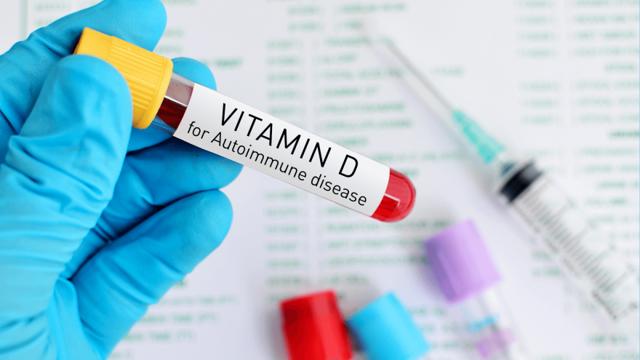 Как определить уровень витаминов по крови