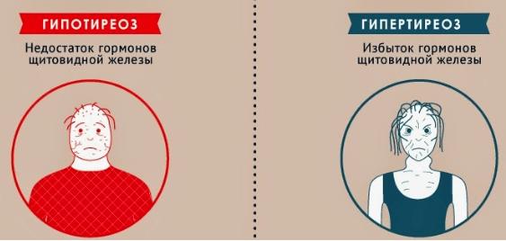 Щелочная фосфатаза: норма в крови, повышена или понижена, причины изменения показателя