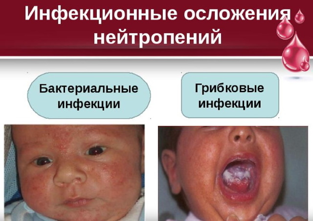 Нейтропения у детей: что это такое, таблица по возрасту, причины, симптомы, лечение