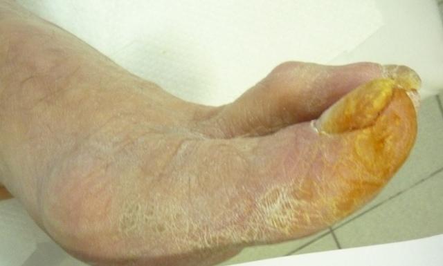 Атеросклероз сосудов нижних конечностей: симптомы и лечение