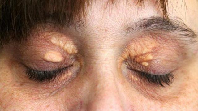 Ксантелазма век: что это такое, причины, симптомы, диагностика и лечение, фото