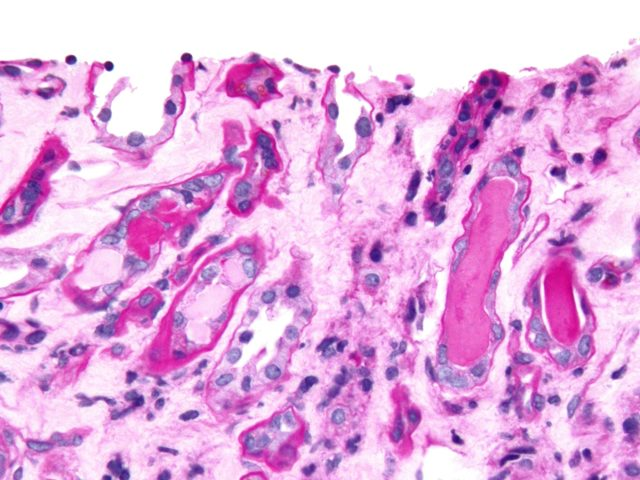 Особенности и последствия болезни Вегенера