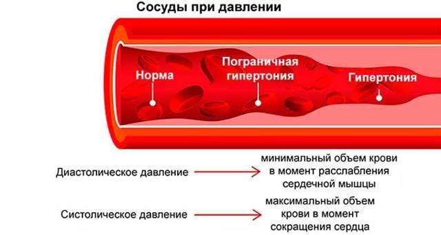 Что такое гипертония и чем она отличается от гипертензии