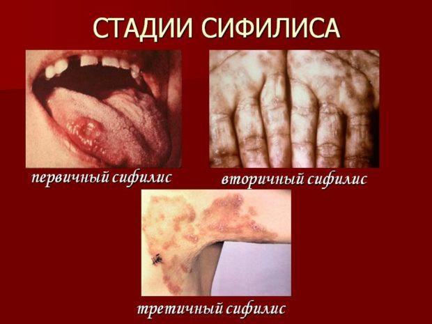 Анализ крови РМП: что это такое, расшифровка, кому назначают, что означает положительный результат