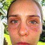 Коагулопатия: что это такое, причины, симптомы и лечение