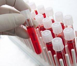 Повышенные лейкоциты в крови у ребенка: причины, симптомы, как понизить, лечение и профилактика