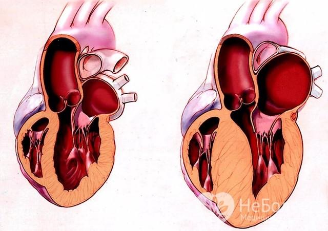 Дилатация: сердца и предсердий, правого и левого желудочка, миогенная и тоногенная