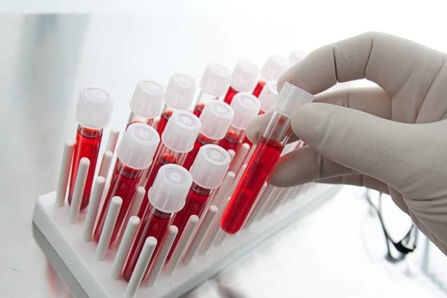 Влияет ли прием антибиотиков на анализ крови | Здоровые сосуды, лечение и профилактика