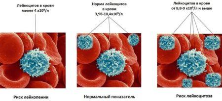Норма лейкоцитов в крови у мужчин: таблица по возрасту, причины отклонений