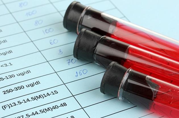 Показатель rdw в анализе крови крови: что это, почему повышен или понижен, норма и расшифровка результата