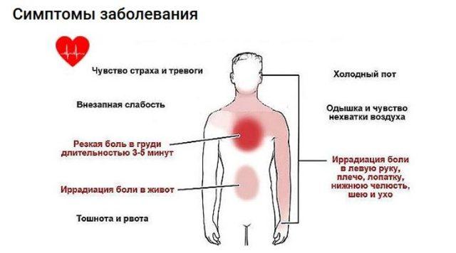 Давящая тяжесть в грудине: тяжело дышать, ком в горле, причины, лечение и профилактика