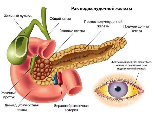 Онкомаркеры: виды и норма в крови у женщин и мужчин, расшифровка анализа